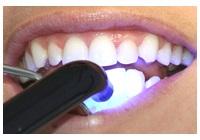 Zahnaufhellung